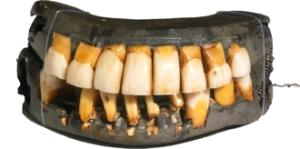 GW teeth